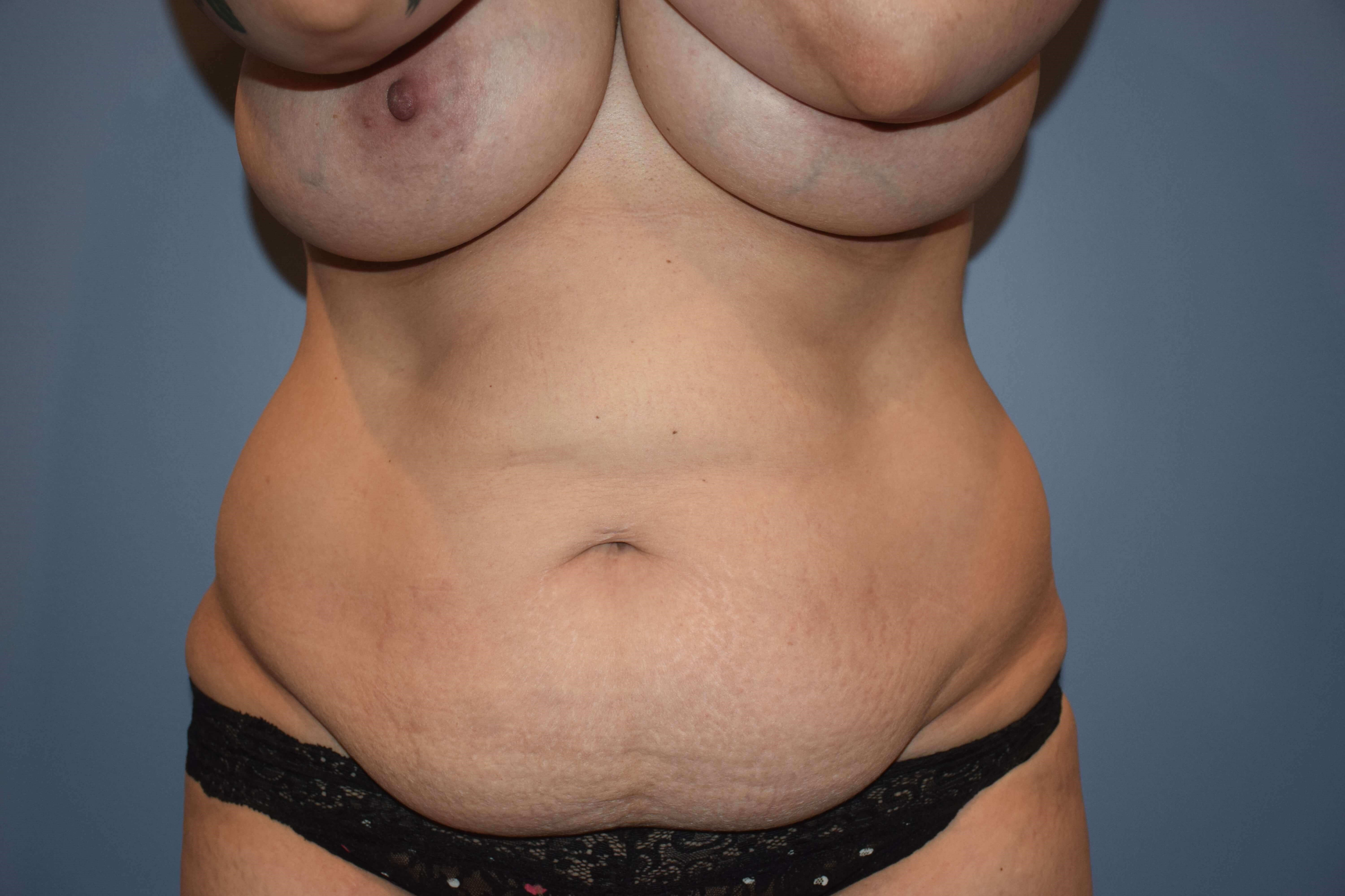 Abdominoplasty (Tummy Tuck) Before