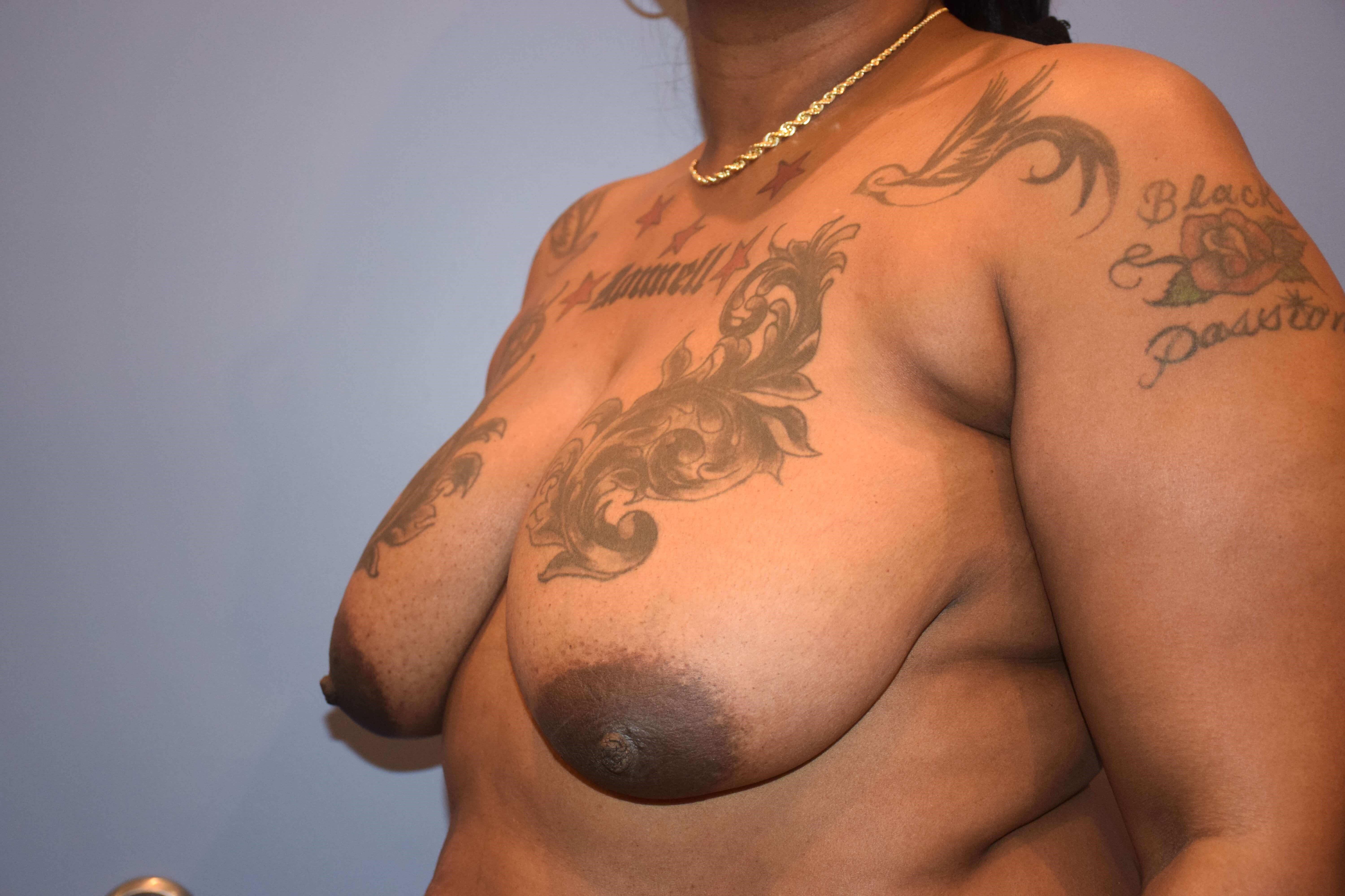 Mastopexy with Augmentation Before