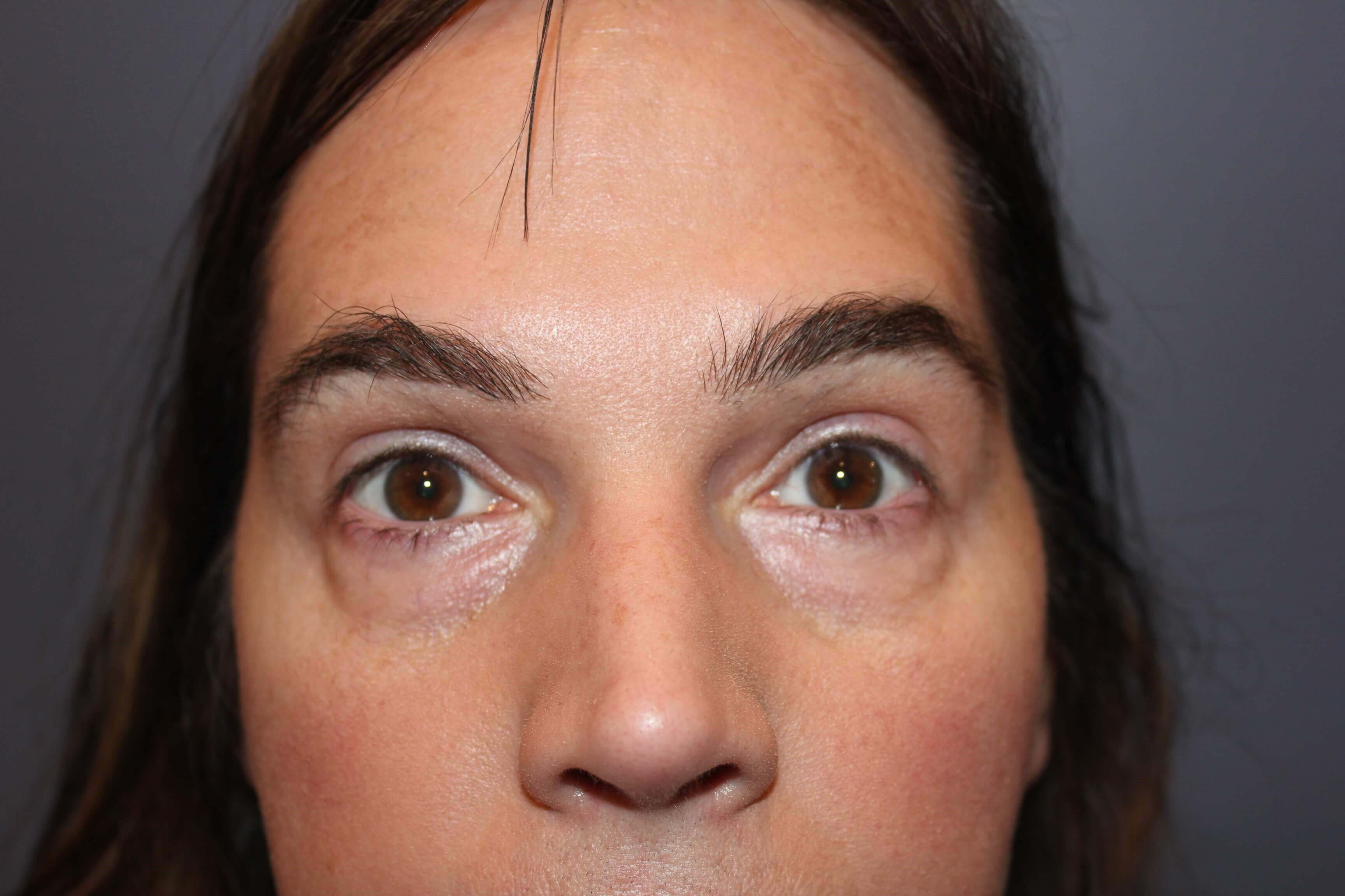 Lower Eyelid Blepharoplasty Before