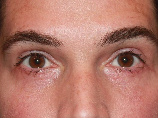 Lower Eyelid Blepharoplasty After