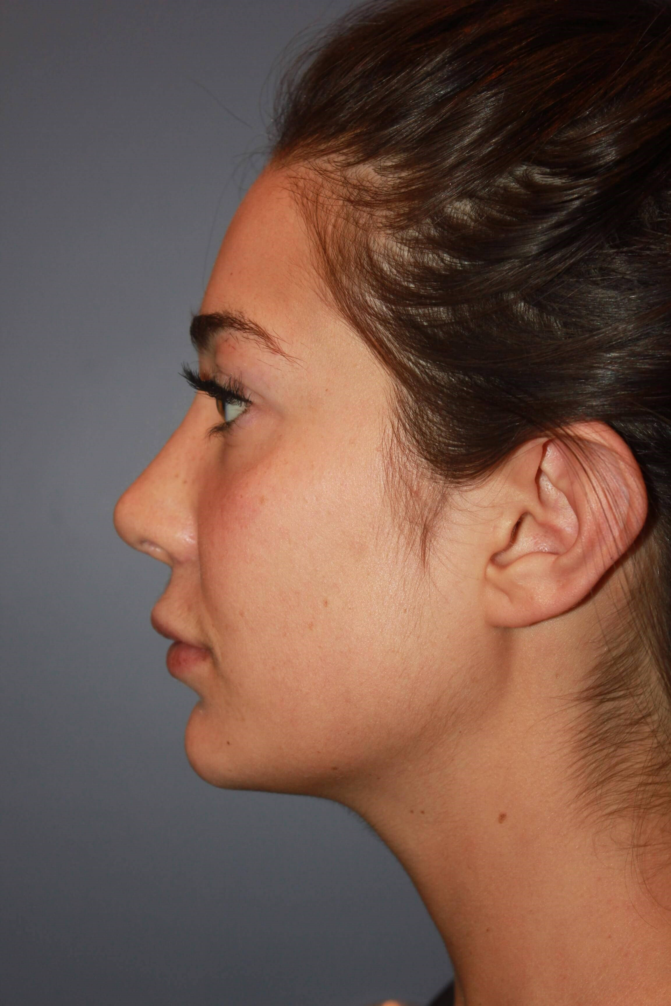Revision Rhinoplasty After