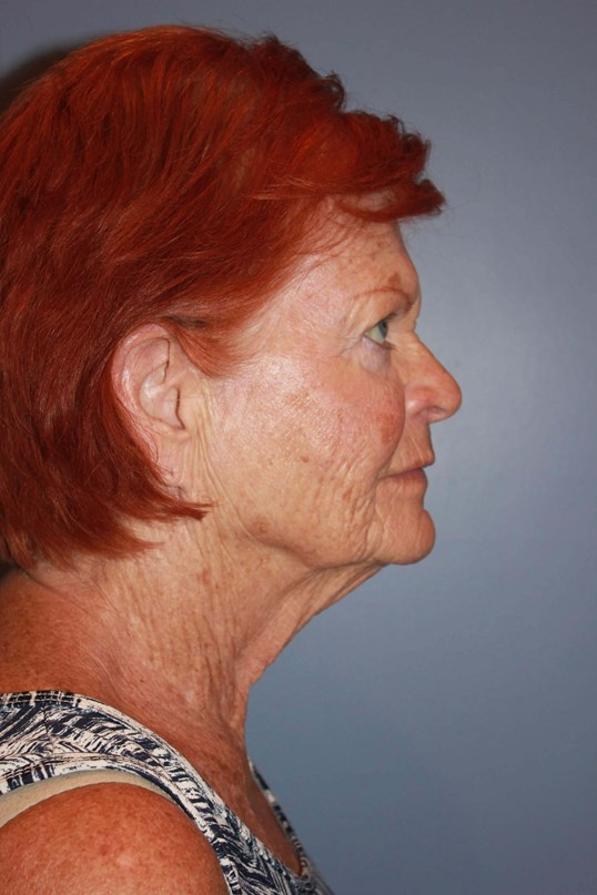 Facelift Before