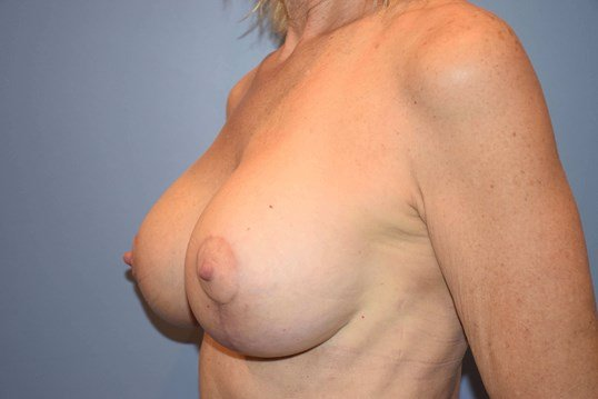 Mastopexy After