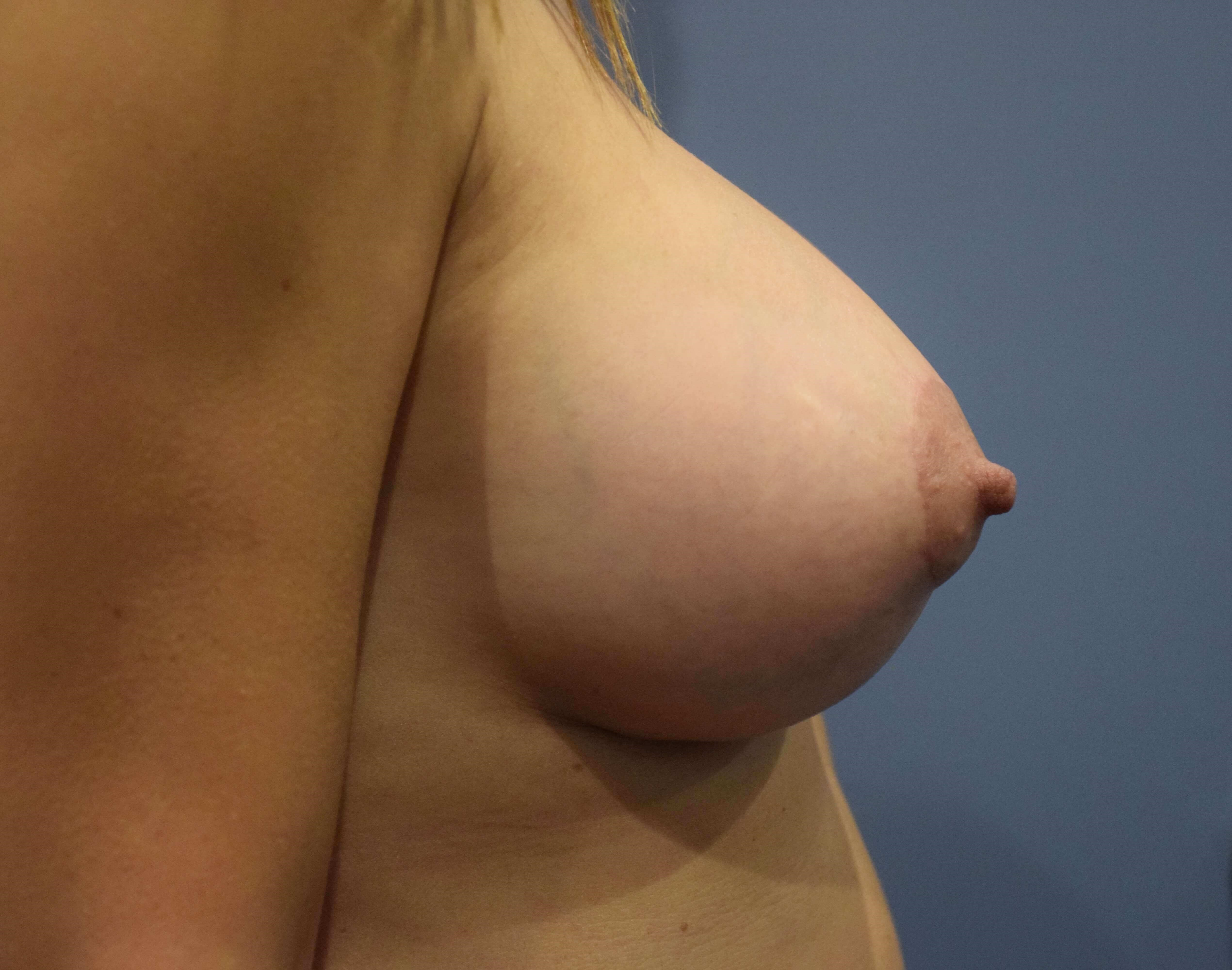 Mastopexy with Augmentation After