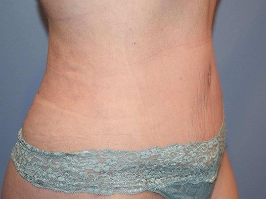 Abdominoplasty (Tummy Tuck) After