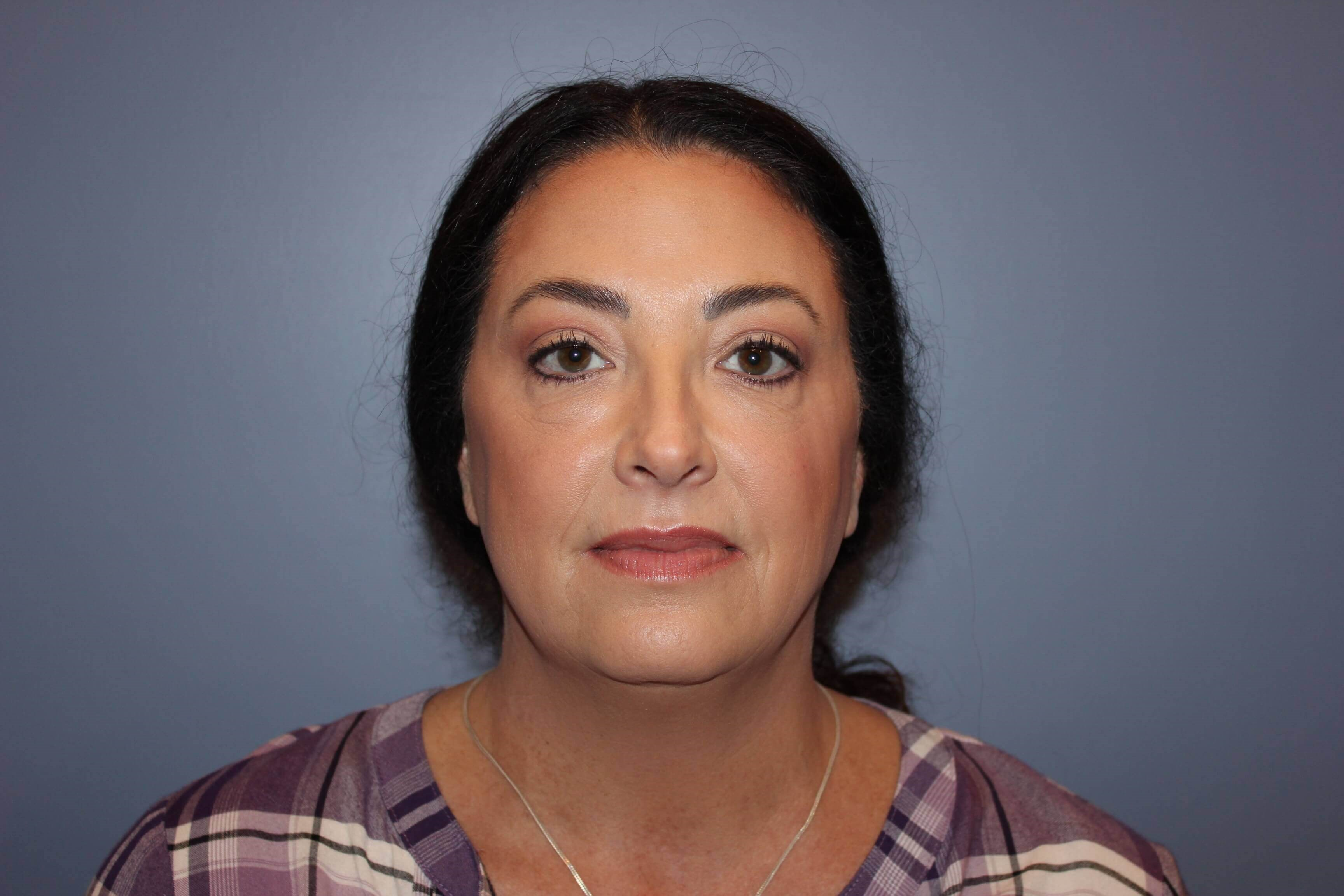 Neck Lift, Blepharoplasty Before