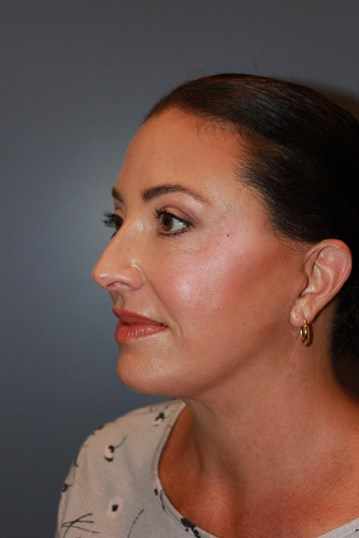 Neck Lift, Blepharoplasty After